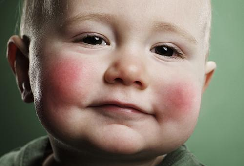 Генетические синдромы у детей список