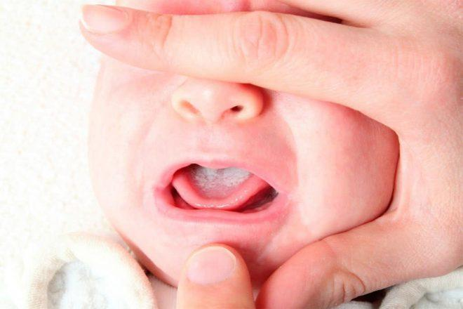 molochnica-u-novorojdennogo