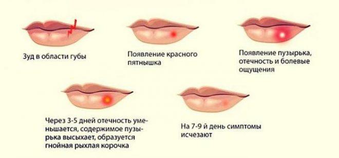 Stadii-gerpesa-na-gubah
