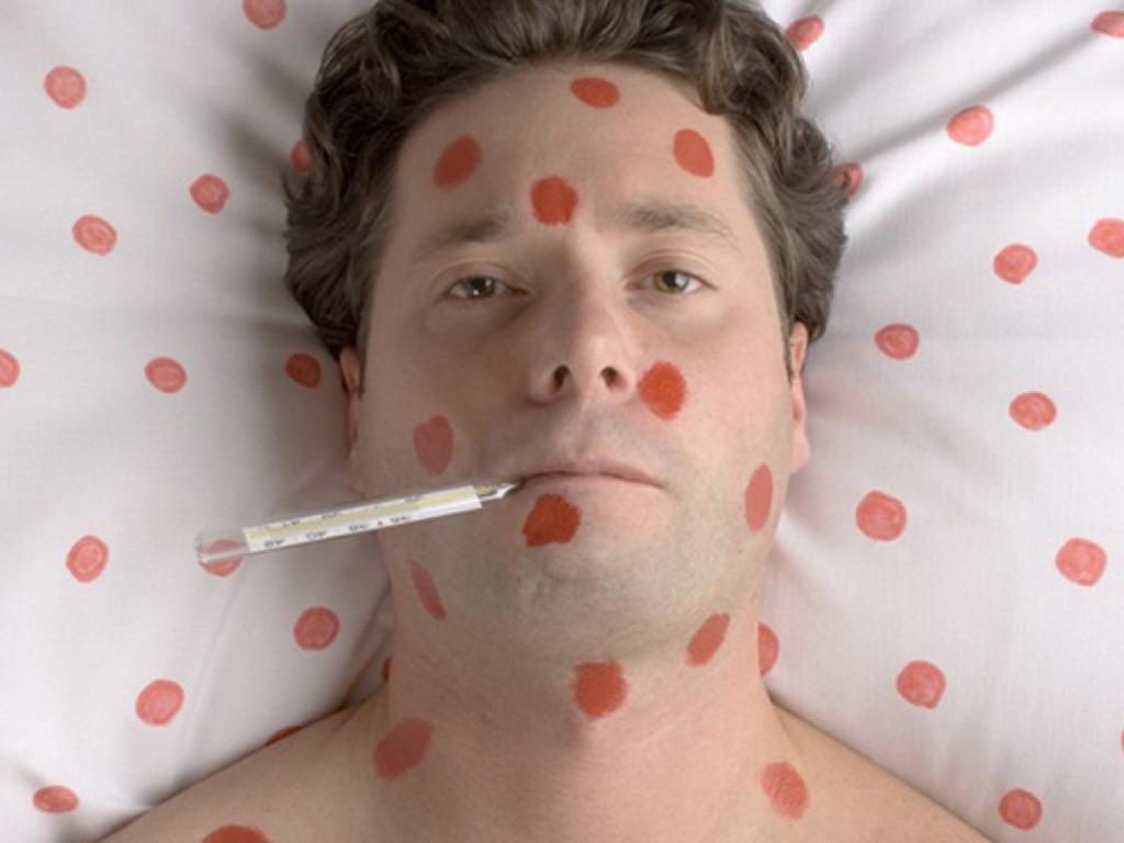 Корь: симптомы заболевания и вакцинация